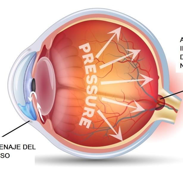 Glaucoma1