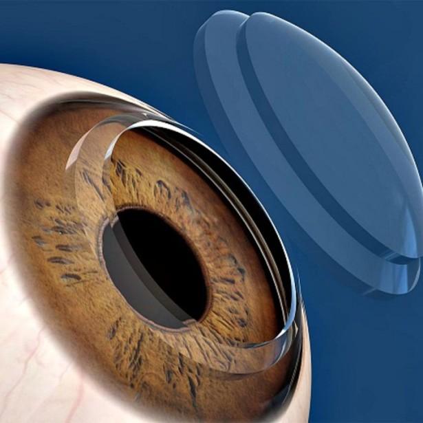 transplante-cornea